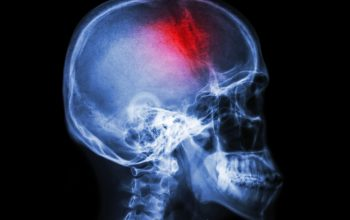 Stroke . film x-ray skull lateral view show human skull and stroke . cerebrovascular accident . isolated background